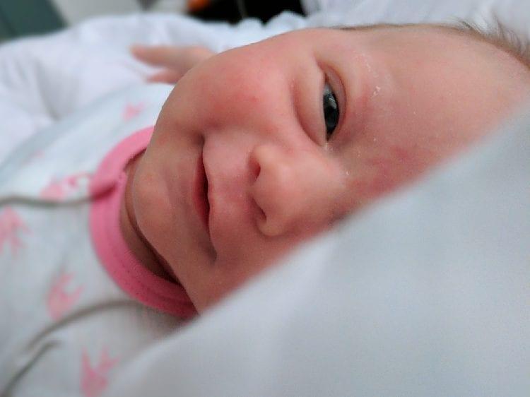 Baby Acne vs Milk Rash / CMPA Rash - Baby