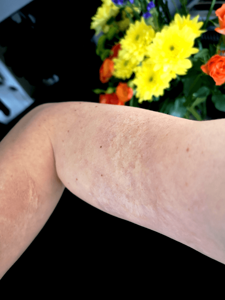 Healed Skin Graft Following Scald