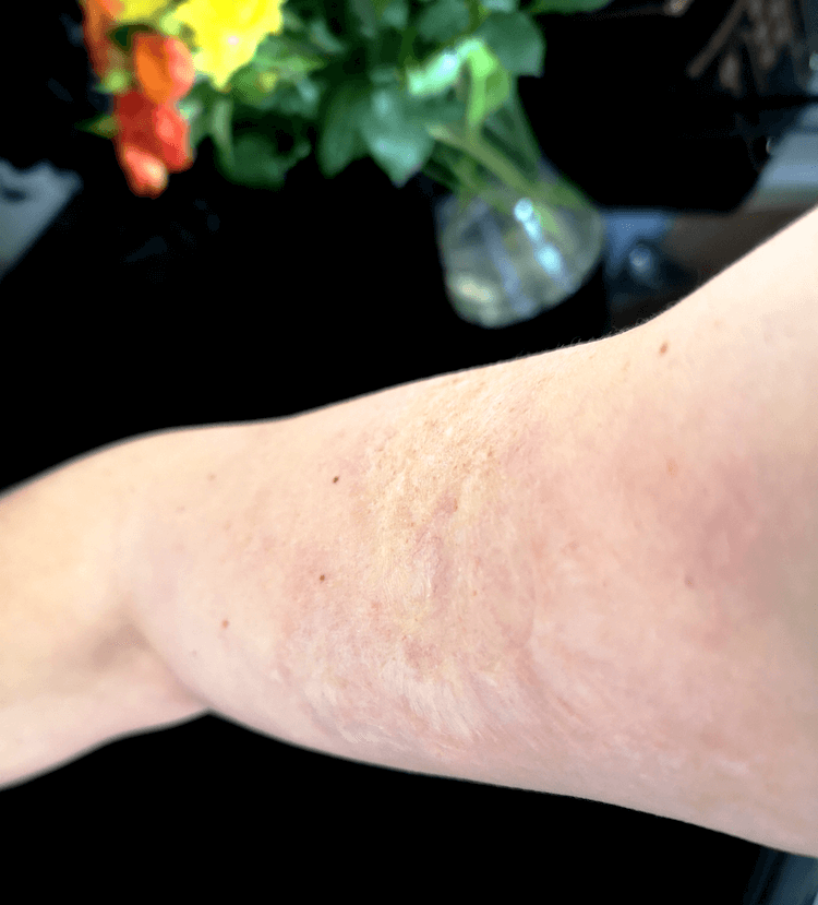 Scald Burn After 30 Years