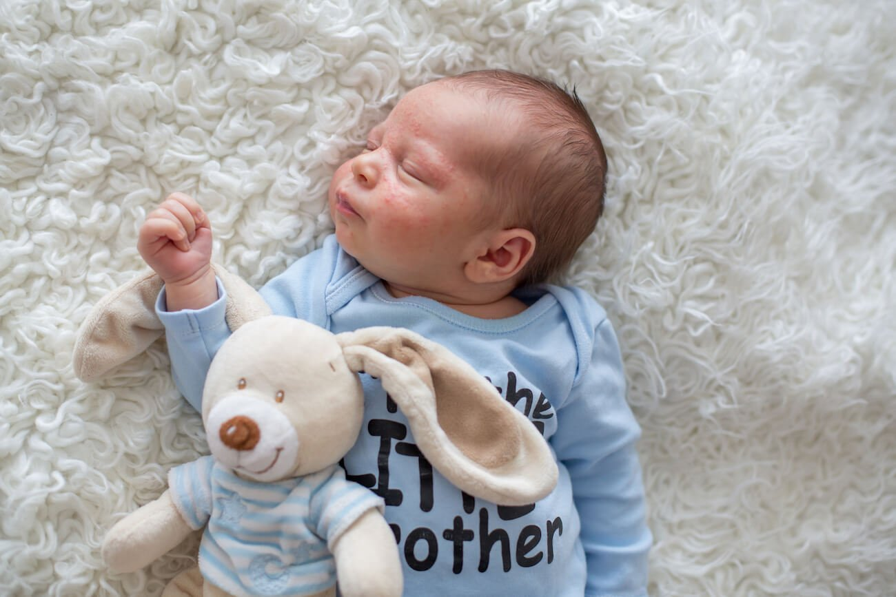 A baby boy with a skin rash laying on a fluffy white rug and cuddling a toy rabbit.